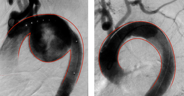 pre-post-angiogram