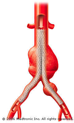 stent-inplace_illustration